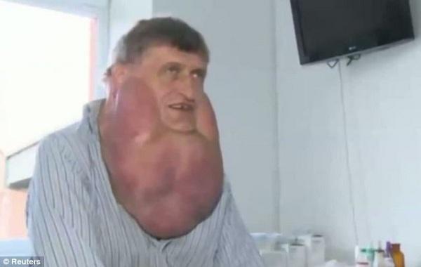 13 pound tumor