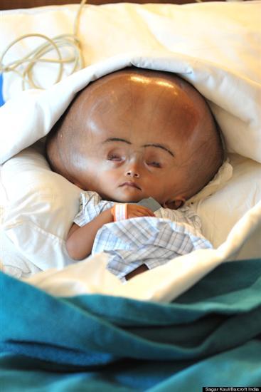 Roona Begum huge head 1