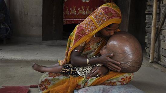 Roona Begum huge head 2