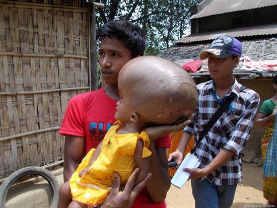 Roona Begum huge head 3