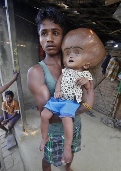 Roona Begum huge head 5