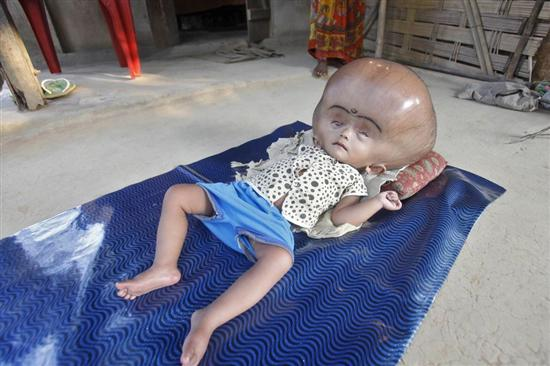 Roona Begum huge head 6