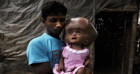 Roona Begum huge head 8