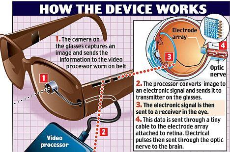 Wireless Bionic Eye 2