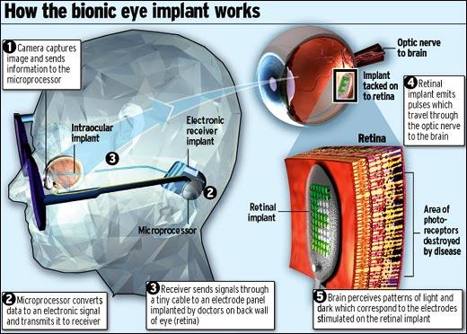 Wireless Bionic Eye 4