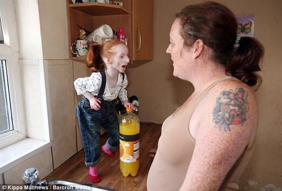 Primordial Dwarfism Baby Smallest Girl in the W...