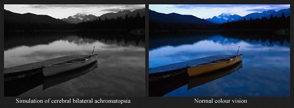 Bilateral_achromatopsia