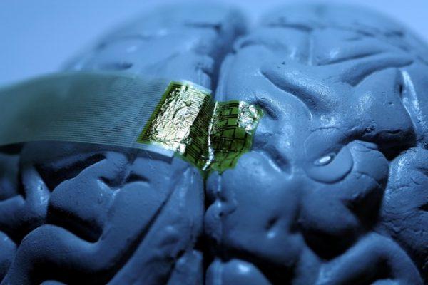 Brain implant 600x400