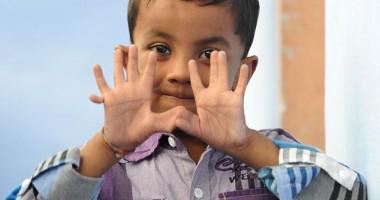 25 fingered boy 4