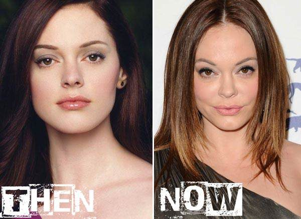 rose mcgowan before and after surgery 600x437